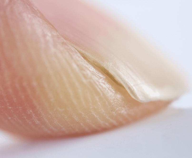 Nine Warnings Your Nails Send You About Your Health
