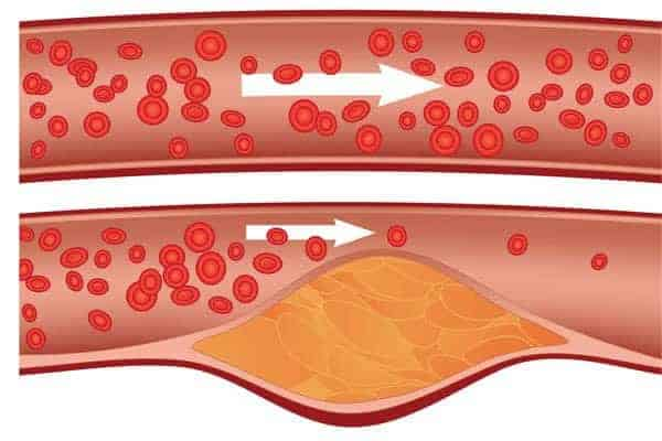10 Home Remedies To Keep Your Arteries from Becoming Clogged