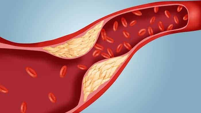 10 Amazing Home Remedies for High Blood Cholesterol