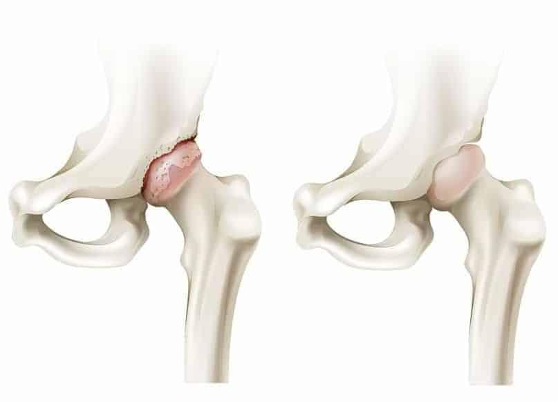 10 Home Remedies for Rheumatoid Arthritis