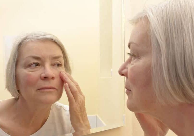 10 Home Remedies To Prevent and Treat Age Spots