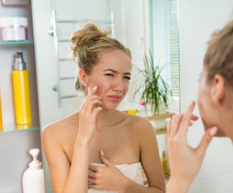 These Skin Creams and Makeup Products Might Cause a Rash and Other Problems